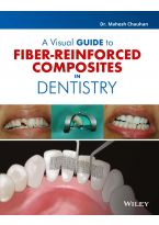 A Visual Guide to Fiber - Reinforced Composites in Dentistry